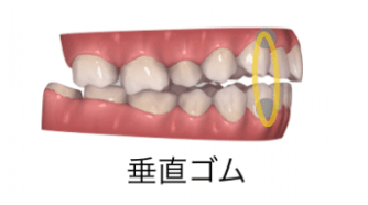 インビザラインと輪ゴム(顎間ゴム)2-④