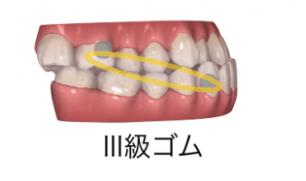 インビザラインと輪ゴム(顎間ゴム)2-②