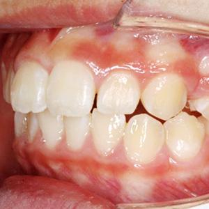 子供のすきっ歯の歯科矯正治療例