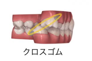 インビザラインと輪ゴム(顎間ゴム)2-③