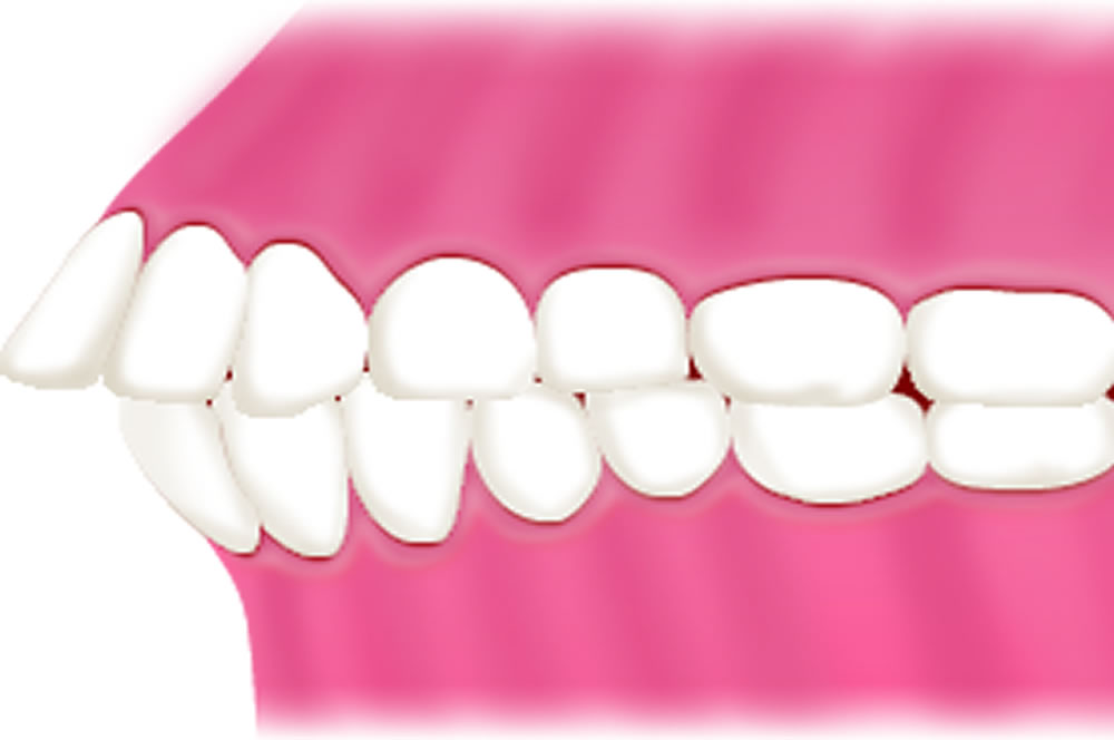 出っ歯「上顎前突」