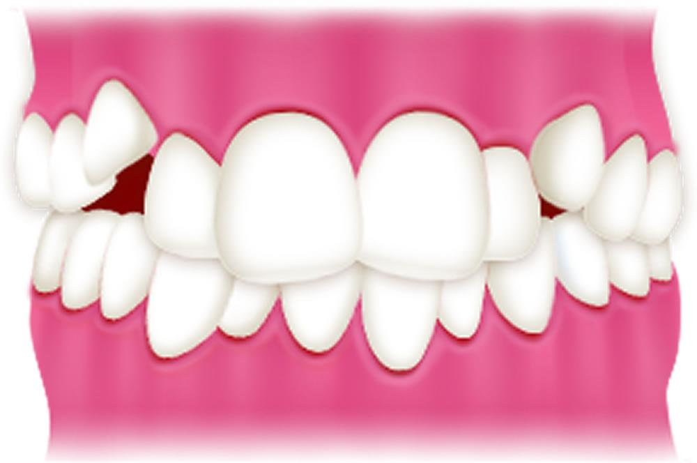 八重歯「叢生」