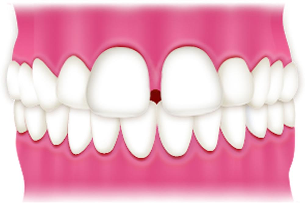 すきっ歯「空隙歯列」