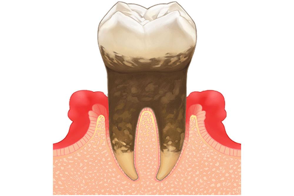 虫歯・歯周病リスクが高まる