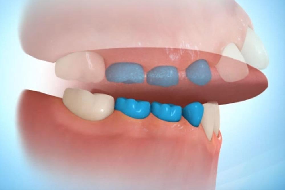 舌癖の改善