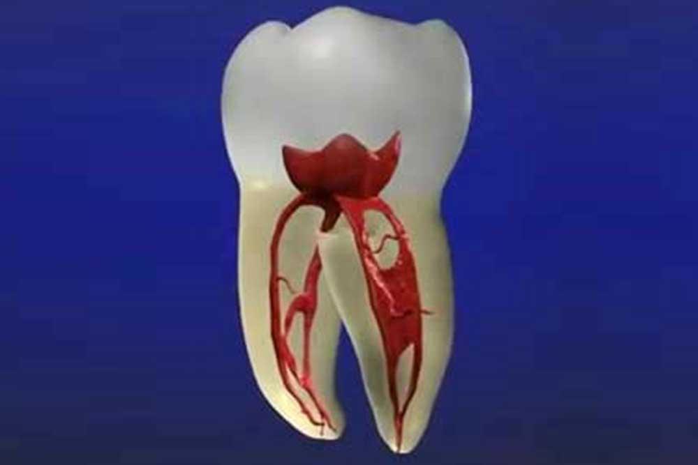 虫歯・歯周病リスク