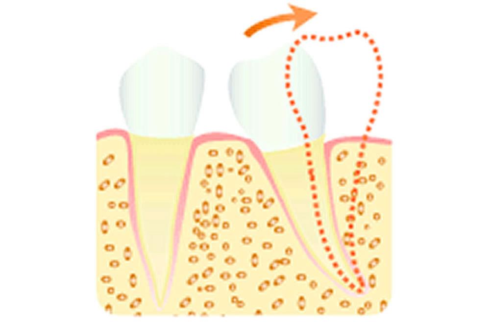 歯の傾きを改善